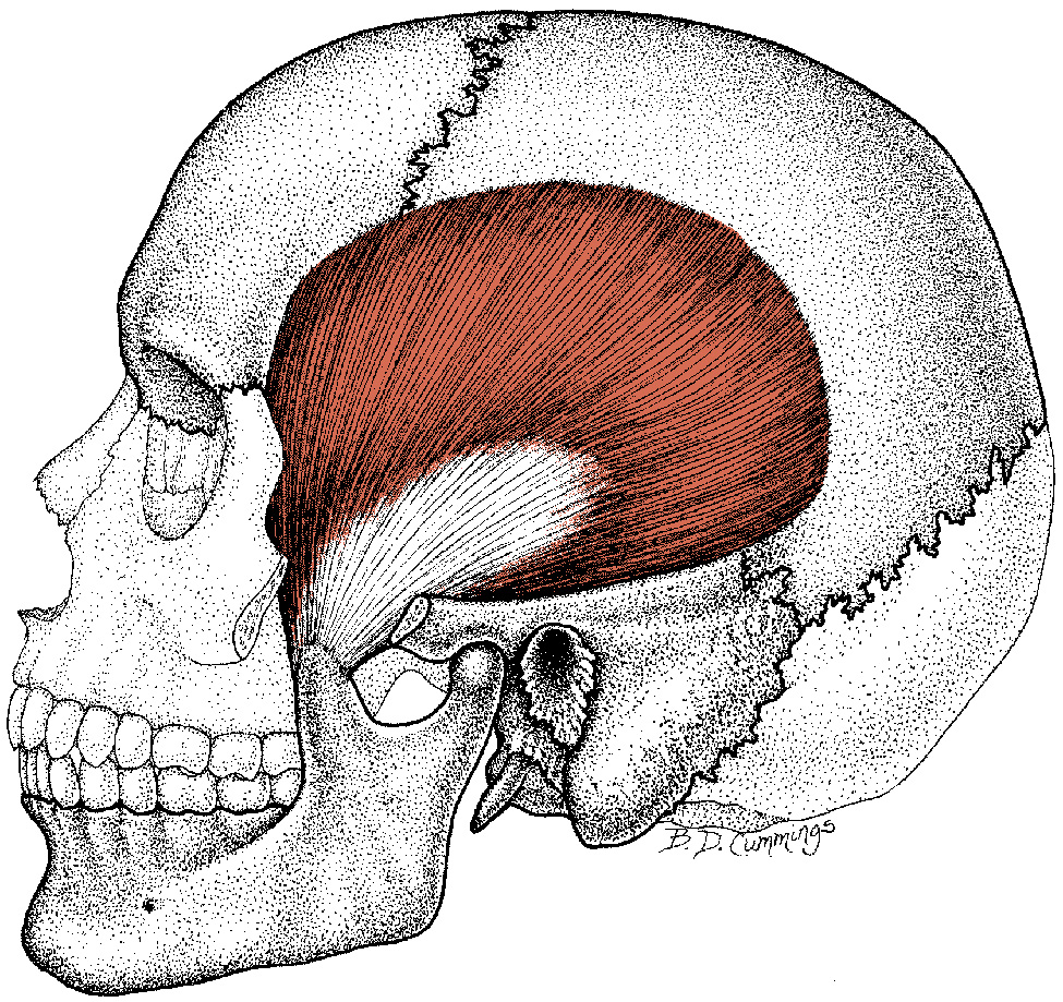 Jaw Pain Can Be Caused By Temple Muscles